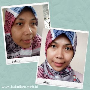 Before After Treatment Electrocauter