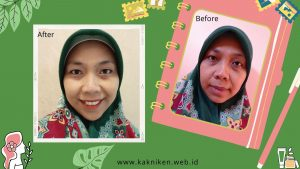 Before After ZAP Treatment